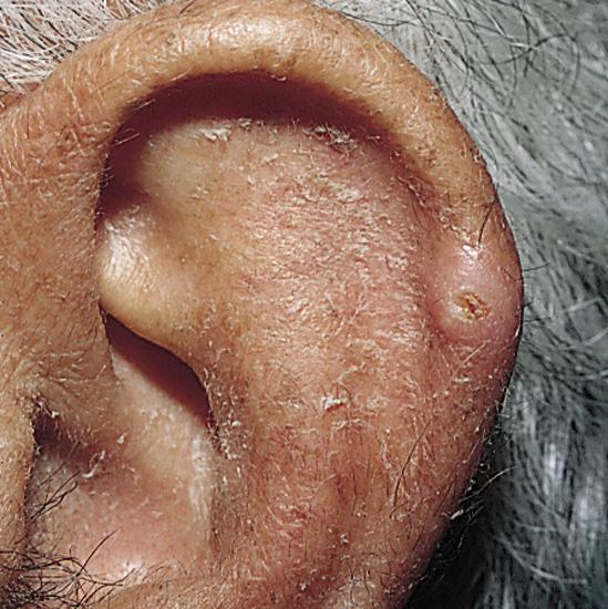 CNH ear 1