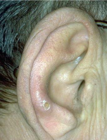 CNH ear 4